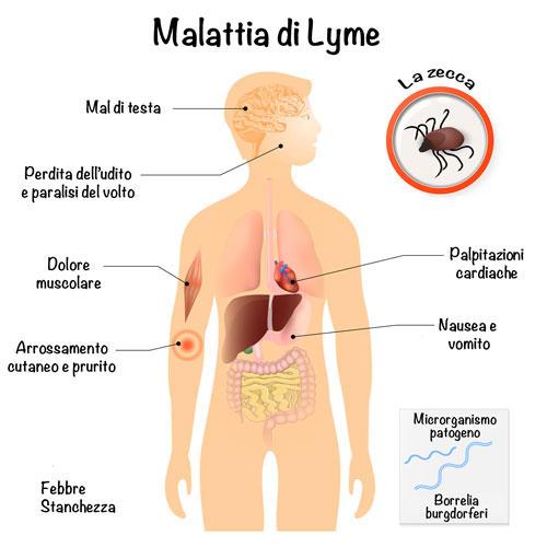 malattia di Lyme trasmissibile all'uomo